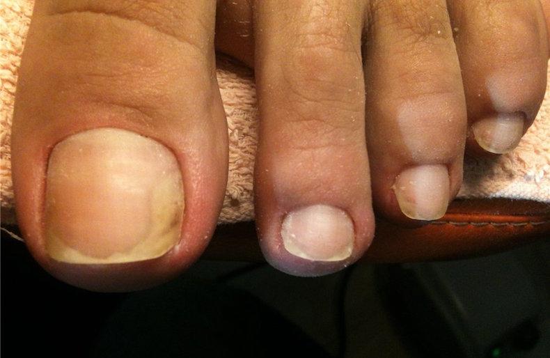 Удаление ногтя с грибком лазером цена