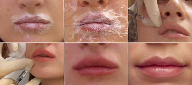Гиалуроновая кислота для губ в домашних условиях